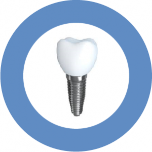 Diabetes may no longer prevent patients from receiving dental implants.