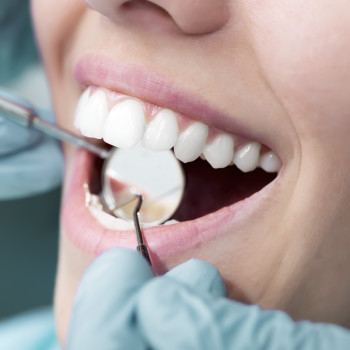 Dental myths and how to combat them